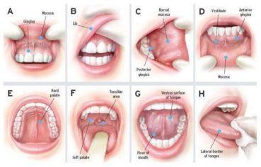 Ağız, Gırtlak Kanseri ve HPV