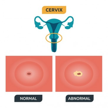 Development Process of Transformation Zone and Cervical Cancer (cervical cancer)