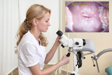 What Is Colposcopy ? How Is It Performed?
