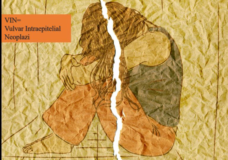 VIN = Vulvar İntraepithelial Neoplazi = Vulvar Intraepithelial Neoplasia Nedir? Nasıl Sınıflandırılır?