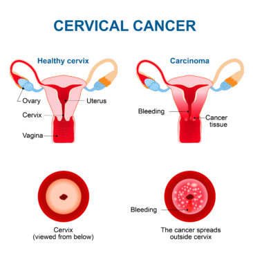 Cervical Cancer Indications