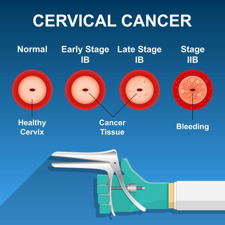 Rahim Ağzı (Serviks) Kanseri için Risk Faktörleri 2