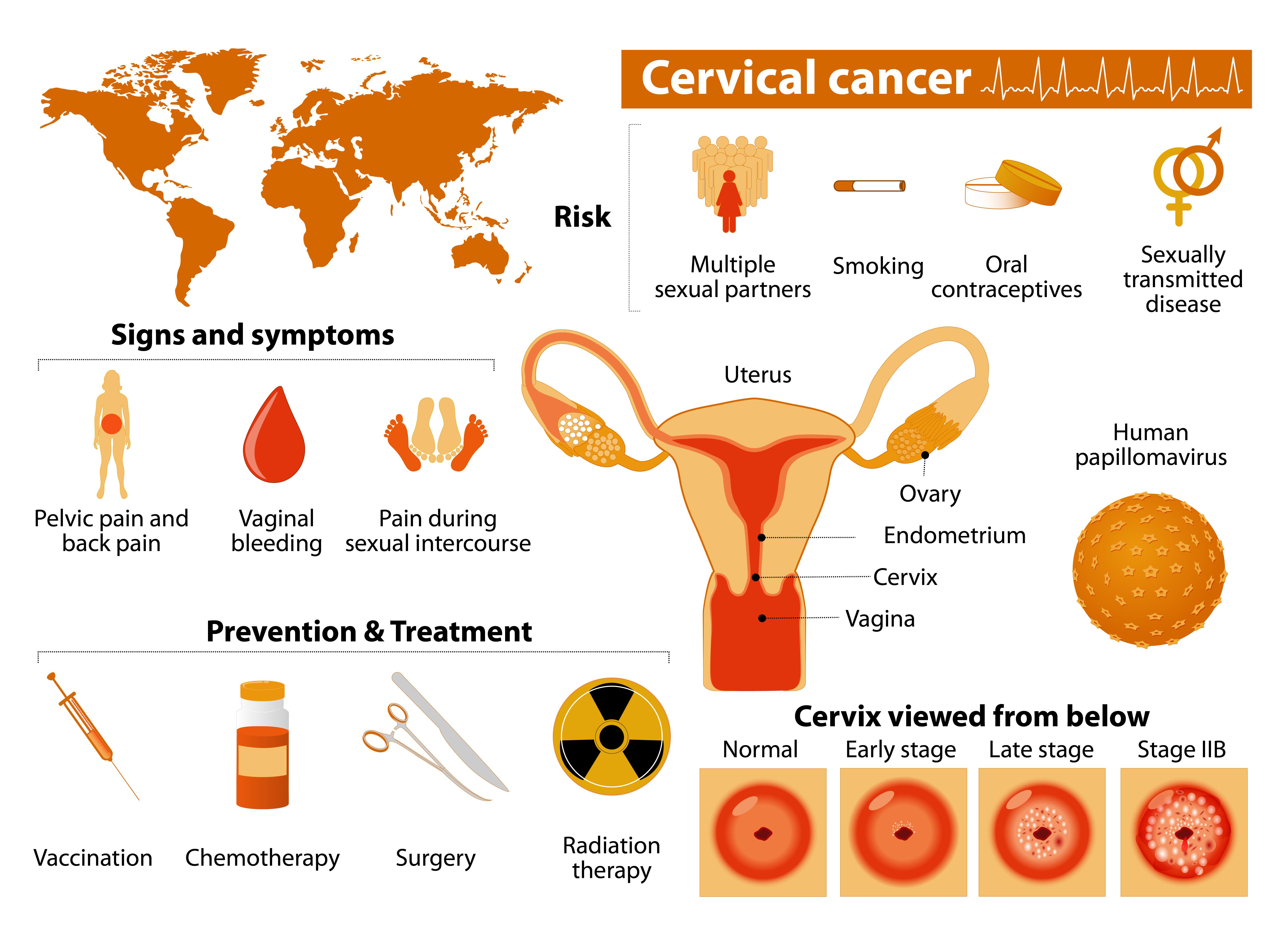 Rahim ağzı kanserine yeni teşhis yöntemi
