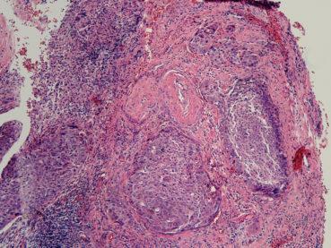 Rahim Ağzı Kanseri (Serviks Kanseri) nin Hücresel Tipleri Nelerdir? Aralarında Ne Fark Vardır?