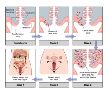 Cervical Cancer Current Staging