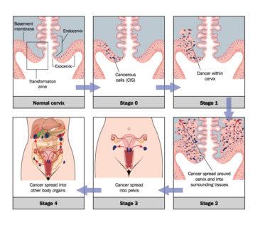 Cervical Cancer Current Staging