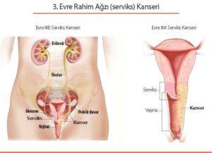 Evre IIB ve IVA Serviks (Rahim Ağzı) Kanserinde Tedavi